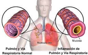 bronquitis enfermedades respiratorias 8