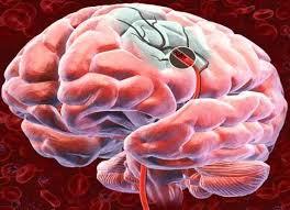 enfermedades cerebrovascular 7